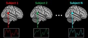 autismo ricerca cervello musica