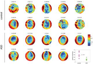 magnetoencefalografia  autismo precisione diagnosi ricerca