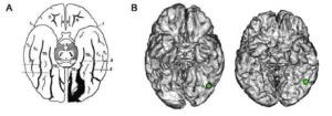 plasticità cervello ricerca