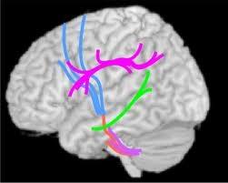 specificità strutturali cervello autismo