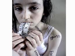 autismo anoressia
